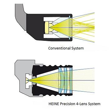 HEINE Precision 4-Lens System